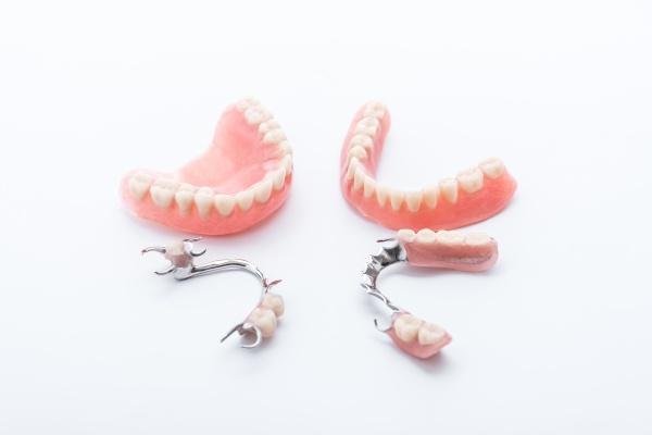 Pose de prothèse dentaire